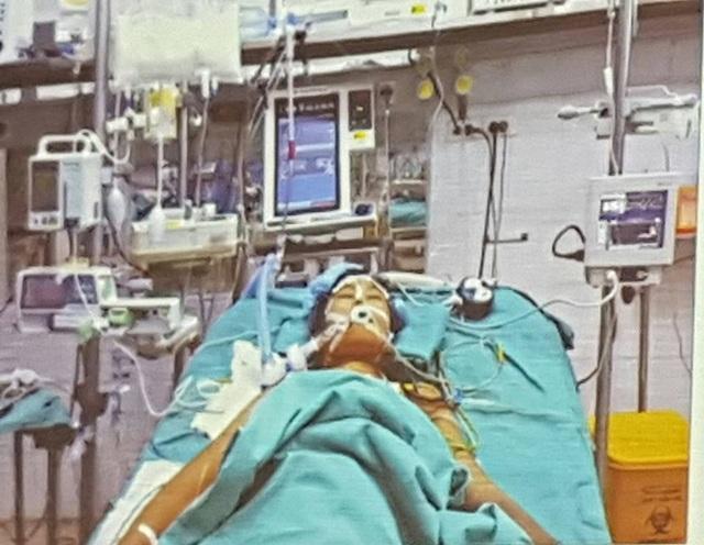 Sau ghép gan, tình trạng bệnh nhân rất nặng, phải hồi sức đặc biệt.