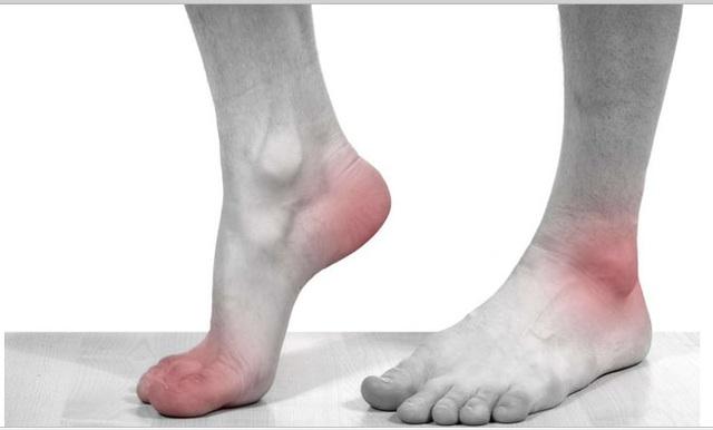 Cơn đau gút liên tục tái diễn chính là gút mạn tính