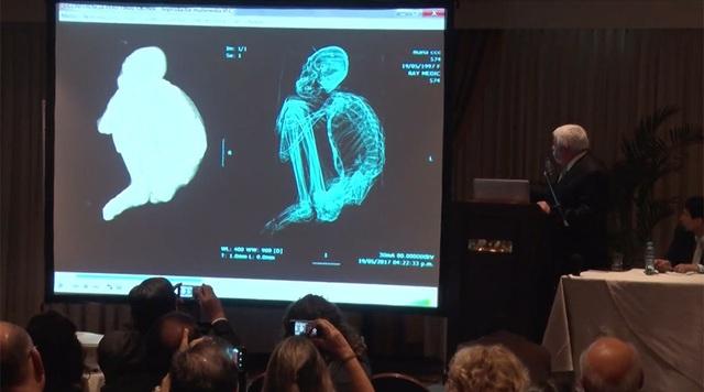 Chuyên gia UFOJaime Maussan công bố phát hiện về người ngoài hành tinh ở Peru hồi tháng trước.
