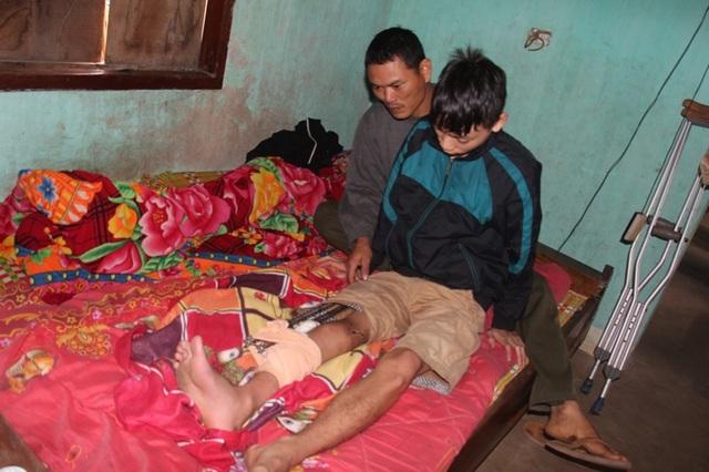 Em Tú với chiếc chân phải không có xương đùi. Gần 2 năm nay Tú cứ nằm chờ đợi bố mẹ chắt góp đủ số tiền 250 triệu để cứu lấy đôi chân cho mình