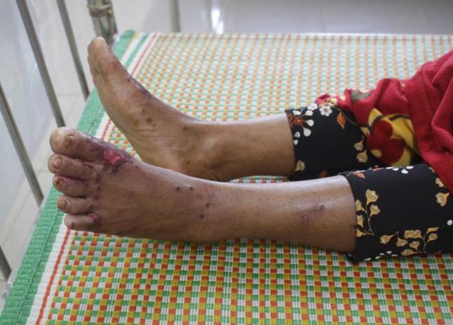 Căn bệnh khiến bàn tay, bàn chân bị dày sừng, lở loét và có thể dẫn đến tử vong vì nhiều biến chứng