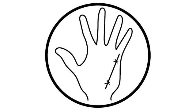 Có đường này trên lòng bàn tay, nghĩa là sức khỏe của bạn đang bị tổn thương - 4