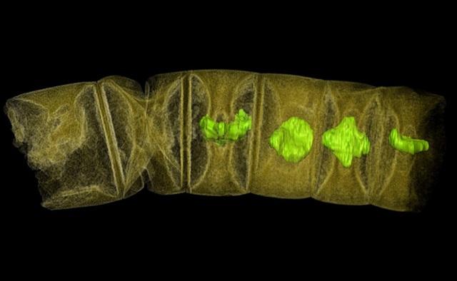 Ảnh chụp tia X hóa thạch giống tảo đỏ