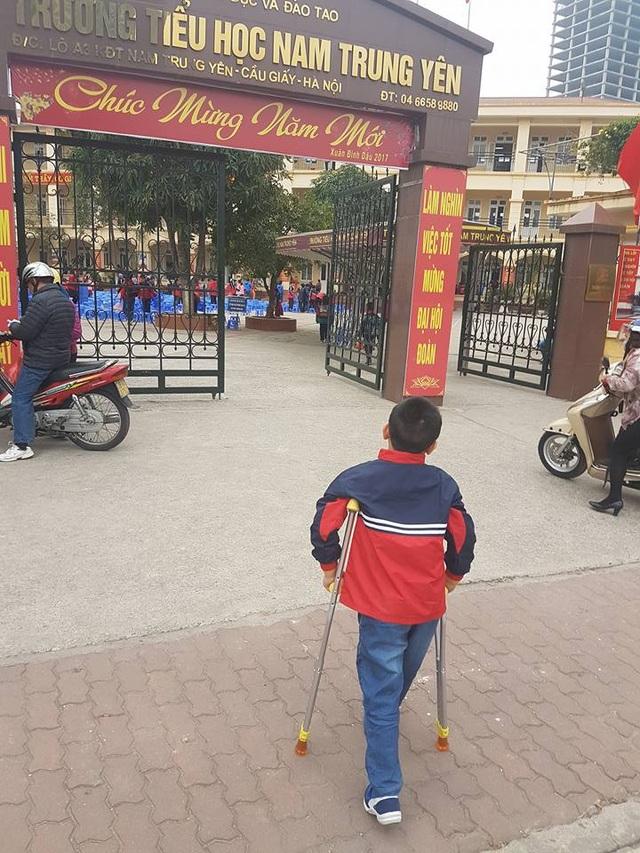 Ngày đầu trở lại trường của cháu Trần Chí Kiên, học sinh bị gãy chân ở Trường tiểu học Nam Trung Yên