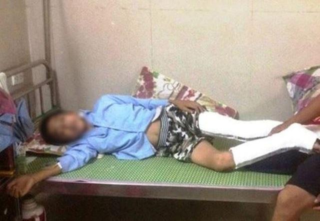 Em Q. bị gãy chân sau khi nhảy từ tầng 3 xuống đất, sau một tuần vẫn chưa khỏi để đi học trở lại được.