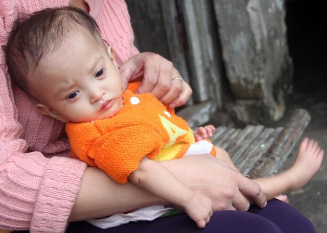 Ngoài chứng bệnh tim, hen suyễn bẩm sinh, hai khóe mắt bé Thanh Nhàn vừa mọc mụt lẹo. Thương con lắm, nhưng vợ chồng chị Hiểu bất lực, chưa thể đưa con đi bệnh viện chữa trị.