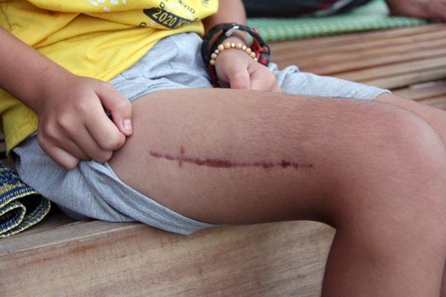 Vết mổ ở bắp đùi của bé vẫn chưa lành hẳn.