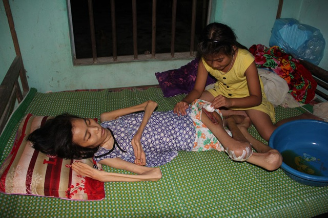 Bố bận đi làm thuê để có tiền chăm nuôi bà nội và mẹ, bé Trà My dẫu mới 9 tuổi đã tự tay chăm sóc mẹ như một người lớn. Trà My rửa ráy vết thương cho mẹ.
