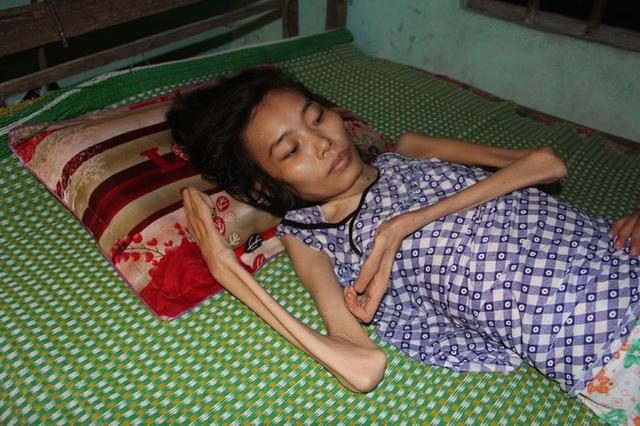 Chị Hường gầy trơ xương, đôi tay teo tóp nằm một chỗ suốt 9 năm nay.