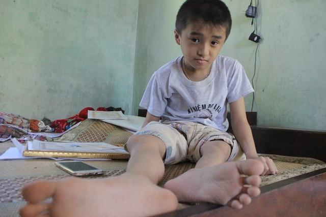 Mới 11 tuổi nhưng Quang đã 17 lần gãy chân do chứng bệnh xương thủy tinh