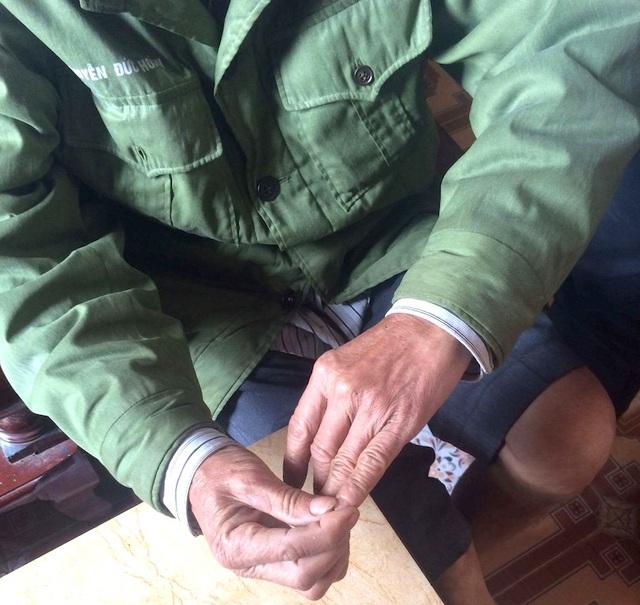 Đầu 10 ngón tay của ông Trác bị dị tật hoàn toàn sau những lần tra tấn giã man của giặc.