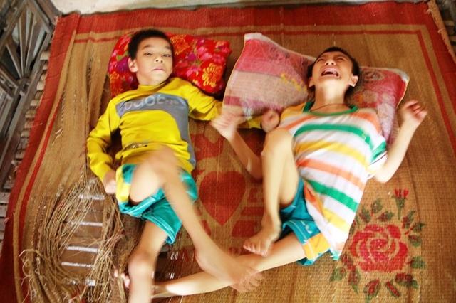 Cháu Hùng và Hiếu đã 10 tuổi nhưng không thể ngồi dậy, chân tay teo tóp, đầu bị lệch, hở miệng...