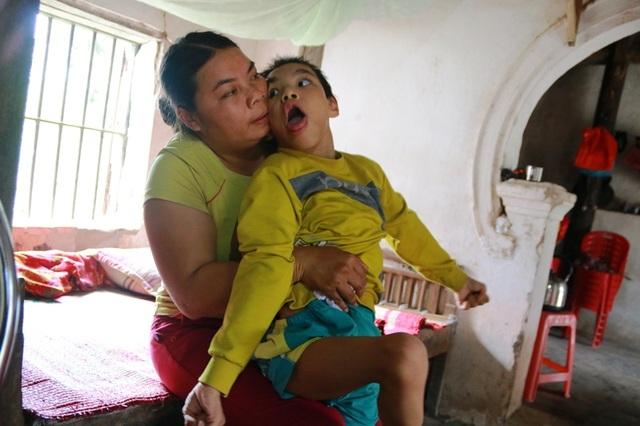 Tháng ngày gian nan nuôi con khiến chị Nhung giờ đây mang nhiều bệnh trong người, nhưng nhà nghèo đành tặc lưỡi để quên đi đau đớn về thể xác