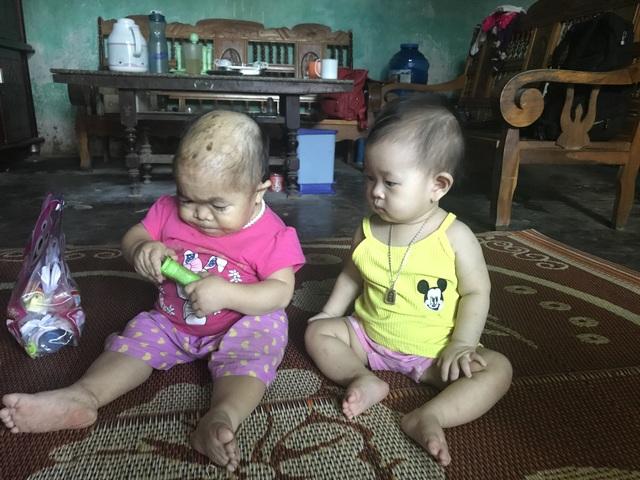 Dù đã 27 tuổi những chị Dung chỉ trông như một đứa trẻ lên 2. Trong ảnh là Dung với người cháu ruột năm nay 9 tháng tuổi. Ảnh: Minh Anh