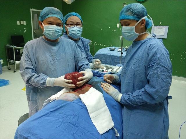 Các bác sĩ phẫu thuật lấy khối u nặng 2kg ra khỏi người bệnh nhân
