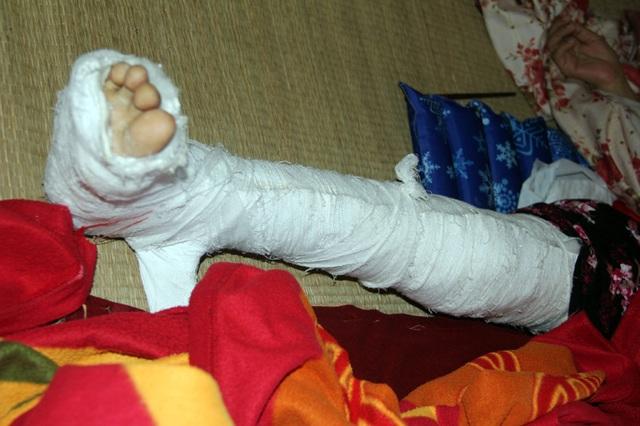Chân chị Luận bị gãy khi chị bước xuống xe sau hành trình dài ngày đi chữa bệnh tại Miền Nam.