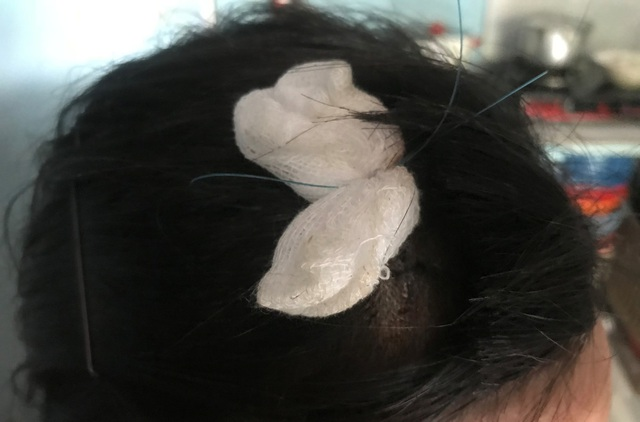 Vết thương khâu 6 mũi trên đầu của nạn nhân do bọn cướp gây ra.