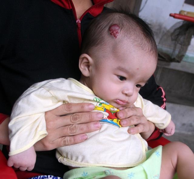 Khối u trên đầu của bé Duy đang lớn dần, thịt trồi ra đỏ tía như quả ngấy. Khối u khiến bé đau đớn, không ăn và biếng ngủ.