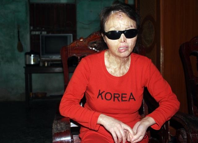 Từ một cô giáo mầm non Lương vĩnh viễn trở thành người tàn phế, mù lòa sau khi bị kẻ xấu tạt a xít.