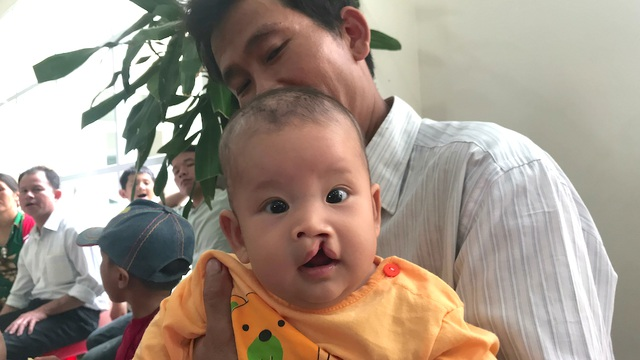 Những đứa trẻ bị hở hàm ếch nặng trong đợt này sẽ được Tổ chức Operation Smile và nhà tài trợ Sika, bệnh viện quốc tế Vinh mổ miễn phí.