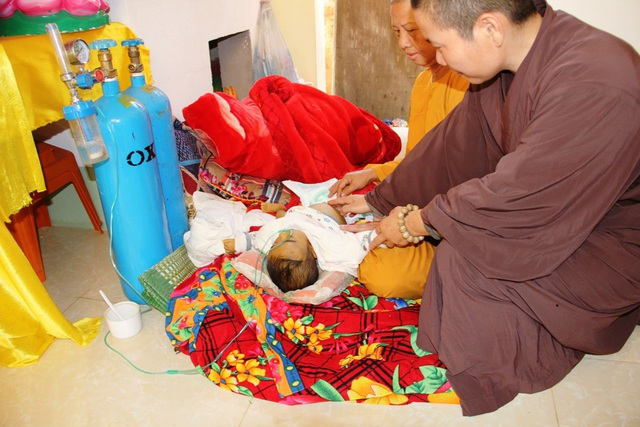 Cháu đã được nương nhờ cửa chùa gần 1 tháng qua. Cũng vì mang bệnh nên biểu hiện rất rõ chứng bệnh tắc đường mật trên thân thể bé Khôi nhỏ bé so với 10 tháng tuổi.