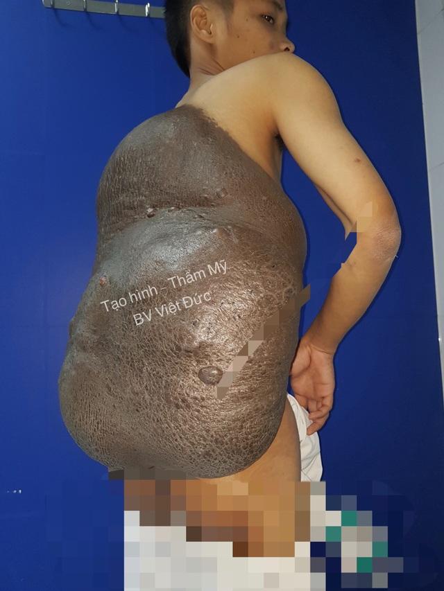 Khối u như một chiếc mai rùa chùm kín lưng, khiến bệnh nhân đau đớn, bất tiện trong sinh hoạt. Ảnh: BS cung cấp.