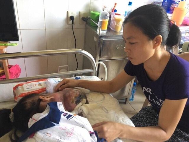 Kim Ngân đang được các bác sỹ tại Bệnh viện Trung ương Huế tiếp tục theo dõi, điều trị