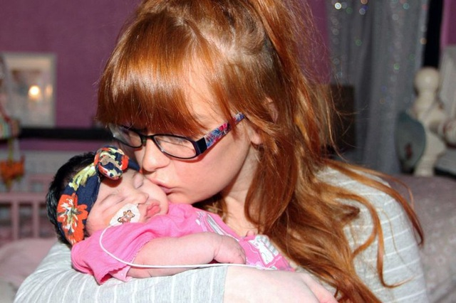 Phút cuối cùng của bà mẹ đau khổ với con gái mới sinh có não ngoài hộp sọ - 1