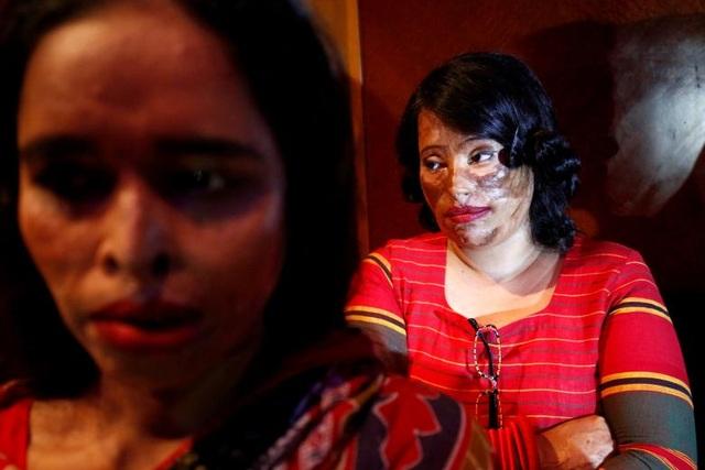 Nạn nhân của các vụ tấn công bằng axit ngồi chờ tại hậu trường để chuẩn bị tham gia cuộc trình diễn thời trang được tổ chức tại thủ đô Dhaka ngày 8/3.
