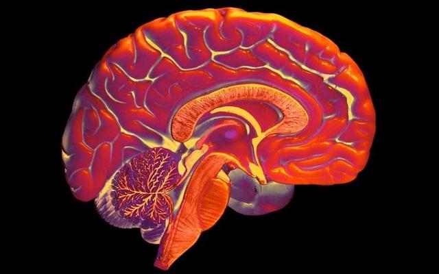 Não nhân tạo từ công nghệ in 3D mở ra hy vọng cho bệnh nhân Alzheimer - 1