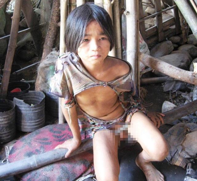 Cậu bé người rừng chỉ mặc độc một chiếc áo suốt 5 năm trời.