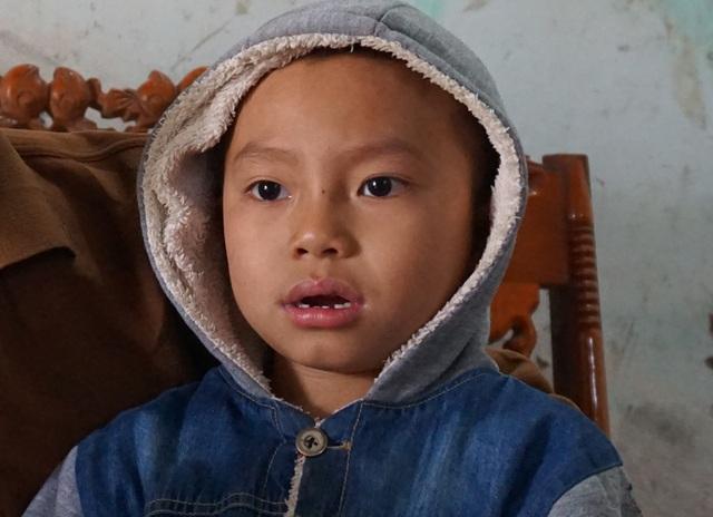 6 tuổi đầu, bé Võ Hoàng Ánh mắc bệnh bạch cầu cấp.