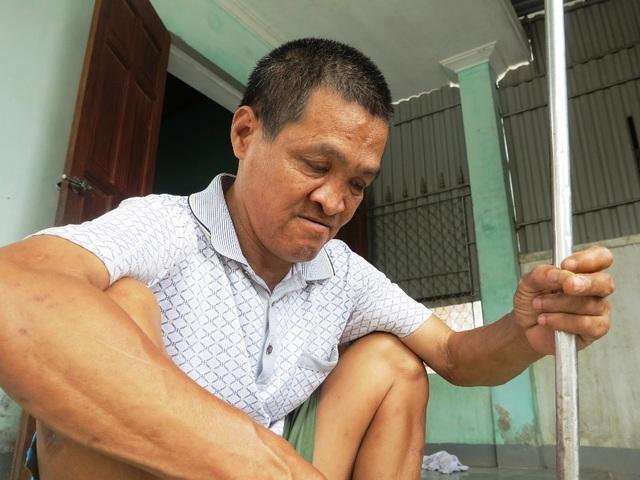 Người con trai út của cụ Thủy là anh Lê Hồng Thái không may nhiễm chất độc màu da cam. Giờ anh bị mù hoàn toàn.