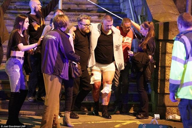 Nhiều người thiệt mạng và bị thương sau vụ nổ. (Ảnh: Dailymail)