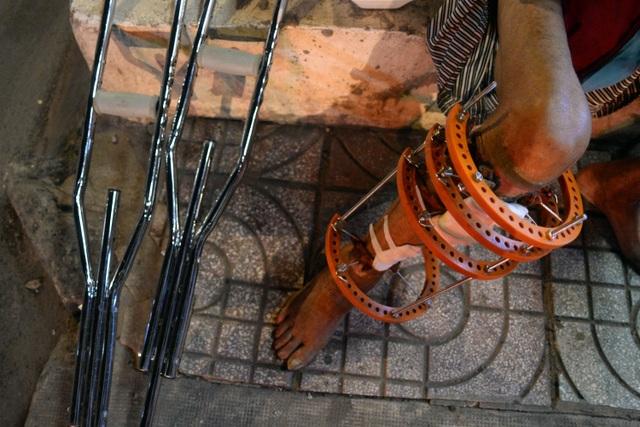Đi đứng khó khăn, nhưng ông Tiều vẫn cố gắng chống nạng đi lượm ve chai bán kiếm tiền, ăn uống bằng cơm từ thiện ở các chùa.