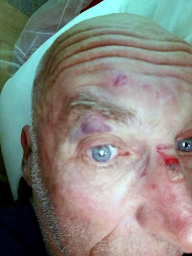 Sau cuộc xô xát, ông Aart bị thương tích nhẹ ở mặt.
