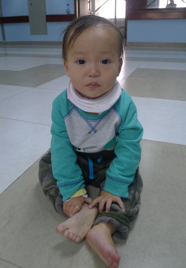 Sau ca phẫu thuật, chiều ngày 10/3 bé Lý Triệu Hồng Sơn được xuất viện về nhà.