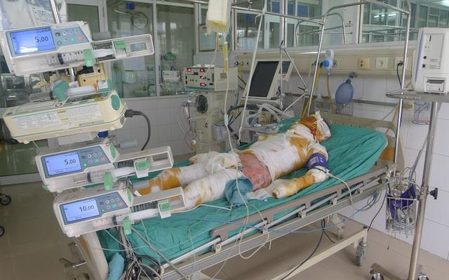 Anh Thành bị bỏng gần 70% cơ thể, bỏng sâu độ 3,4 và bỏng hô hấp. Hiện tính mạng anh hết sức nguy kịch với số tiền điều trị lên đến 12-15 triệu/ ngày.