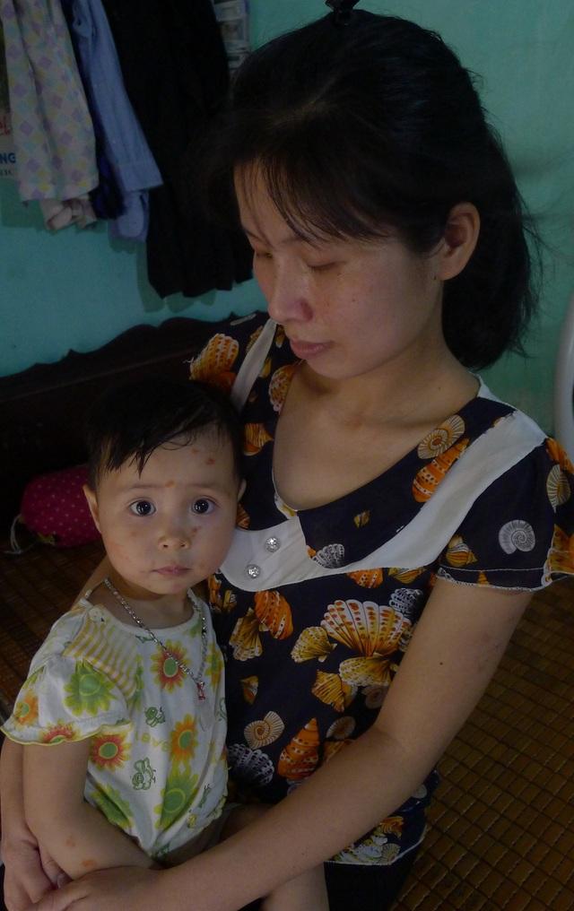Ở nhà chị còn đang chăm bé thứ 2 là Nguyễn Hồng Ngọc (3 tuổi) đang bị thủy đậu.