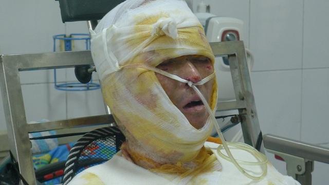 Sau 1 tháng điều trị tại khoa Hồi sức cấp cứu, Viện bỏng quốc gia, anh Thành đã có nhiều chuyển biến rõ rệt.
