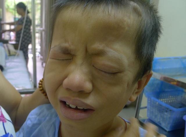 Bị phình động mạch cảnh trong khổng lồ với kích thước từ 10.12cm khiến tính mạng của cậu bé Hoàn vô cùng nguy kịch.