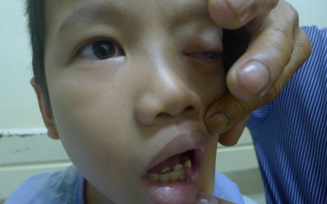Căn bệnh khiến em mọc u ở khắp mọi nơi, cả kể trong miệng.