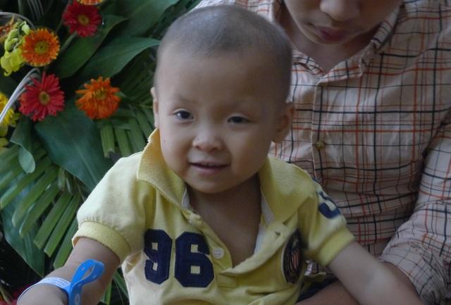 Hiện cô bé Linh phải xạ trị thường xuyên để duy trì sự sống.