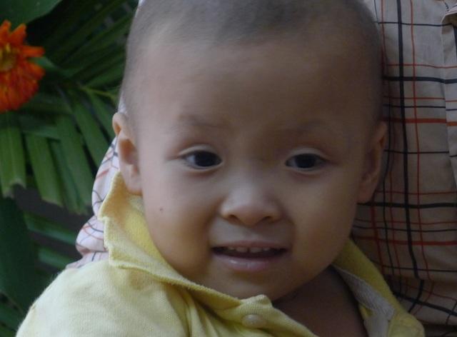 Gương mặt đáng yêu của cô bé Linh khiến mọi người không khỏi xót xa.