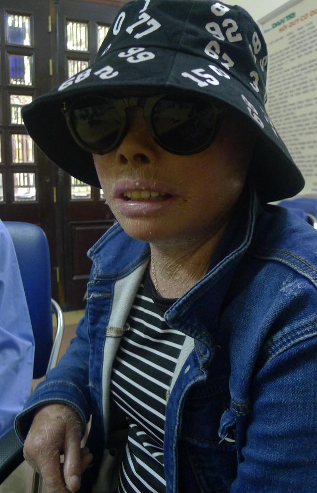 Lần này trở ra Hà Nội em khao khát được chữa trị đôi mắt để không phải sống cảnh mù lòa.