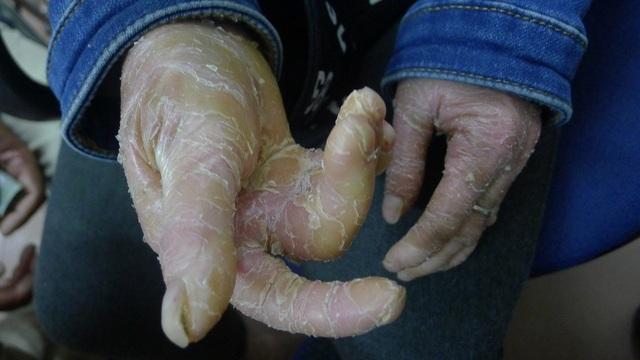 Căn bệnh khiến tay em bị co rút gần như không cử động được.