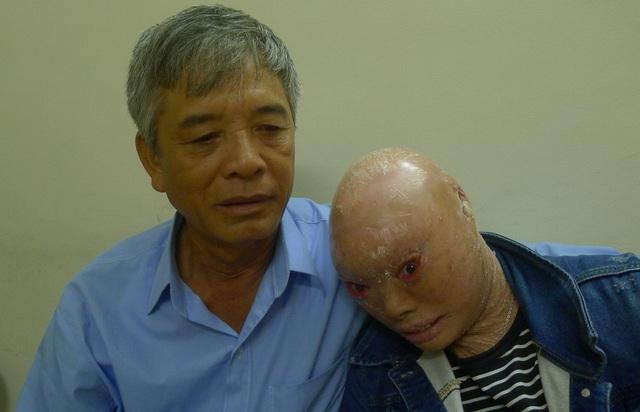 Dồn tất cả số thóc vừa gặt được, chú bán được 6 triệu đồng để cho con ra Hà Nội phẫu thuật mắt.