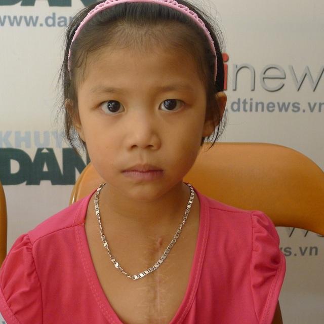 Trở ra Hà Nội để mổ lần thứ 6, Thùy Dương cùng mẹ đến cơ quan báo điện tử Dân trí cầu cứu sự giúp đỡ.