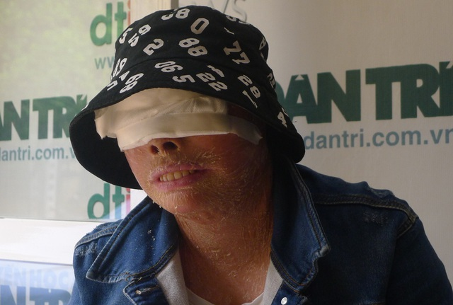 Ca mổ mắt của em Hằng đã được các bác sĩ bệnh viện Mắt TW giúp đỡ.
