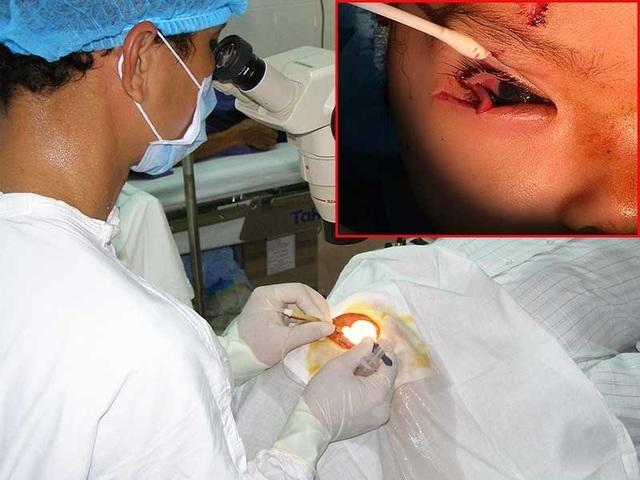 Bác sĩ đang phẫu thuật cho một bệnh nhân bị chấn thương mắt. Ảnh: TRẦN NGỌC. Mắt phải của một trẻ bị vỡ nhãn cầu do vật cứng, sắc nhọn văng trúng (ảnh nhỏ). Ảnh: NGUYÊN PHẠM